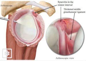frozen shoulder adhesive encapsulitis