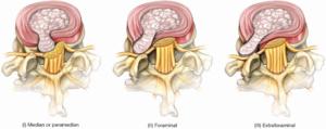 cambridge slipped disc lumbar herniation