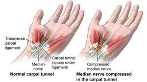 cambridge carpal tunnel syndrome