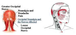 cambridge cervicogenic headache