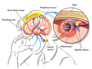 cambridge migraine