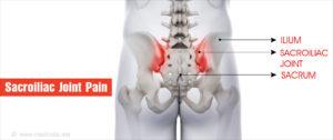 cambridge sacroiliac joint dysfunction